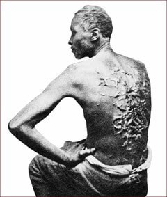 Photo of unknown slave showing his back with scars from repeated whippings. (from public domain)Picture